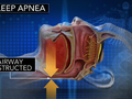 CBS This Morning: Sleep apnea increases risk of heart attack, study finds