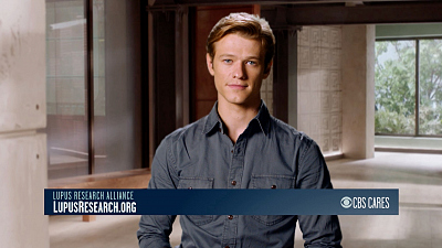 CBS Cares - Lucas Till on Lupus