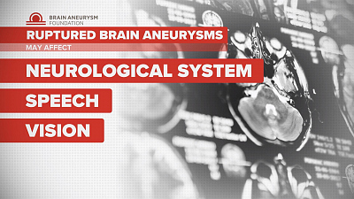 """CBS This Morning - Brain aneurysms """"can happen at any age"""""""