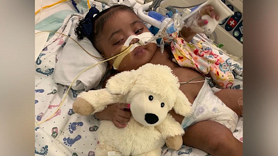 CBS This Morning - 10-month-old to stay on life support: judge