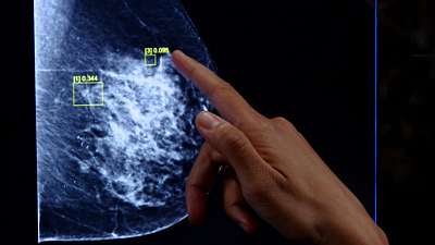 CBS This Morning - AI program to improve breast cancer diagnoses