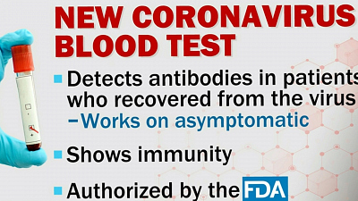 CBS This Morning - FDA authorizes first coronavirus blood test